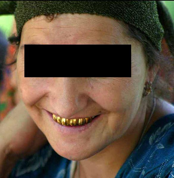 Tajikistan_gold_teeth_new.jpg